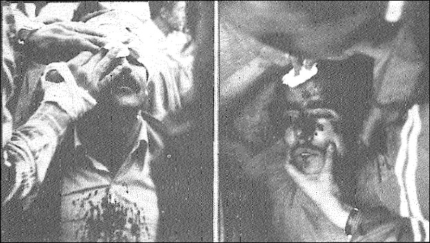 ـ  9 ـ بخشی از زخمی¬شدگان حملۀ فالانژها به میتینگ روز کارگر اکثریتی¬ها در میدان آزادی تهران
